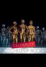 Celebrity Botched Up Bodies: Season 2